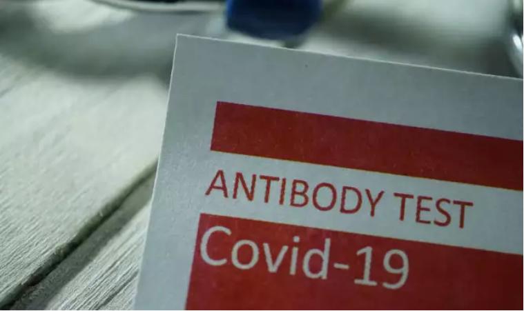 Αντισώματα έναντι του Κορωνοϊού COVID-19